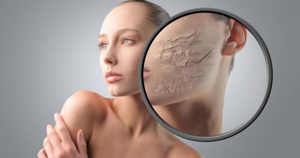 Illustrasjonsbilde tørr hud