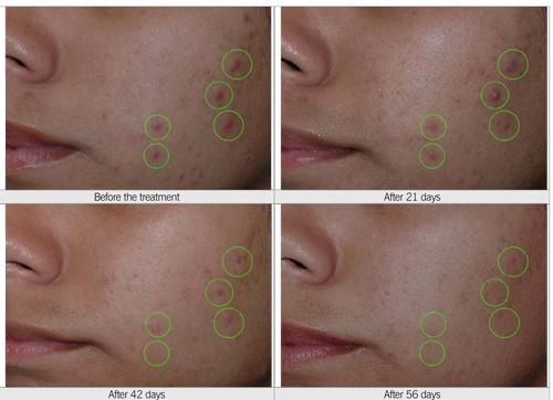 Før, under og etter behandling med S5 Cosmeceuticals